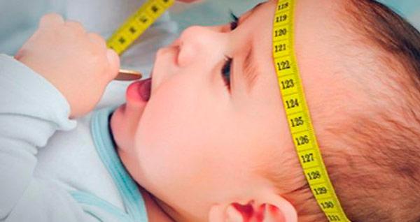 водянка у новорожденых